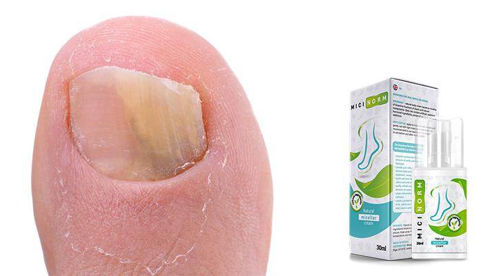 Micinorm: jednoduchý způsob porazit plíseň, svědění a praskliny!