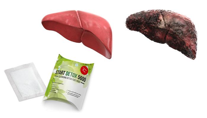 Start Detox 5600 proti toxinům: průlomová kúra přirozeně odstraňuje smrtonosné toxiny z organismu