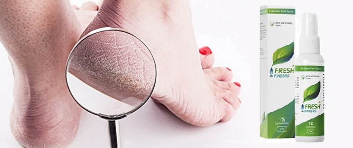 Fresh Fingers z houby nehtů: přestaňte se stydět za nohy!