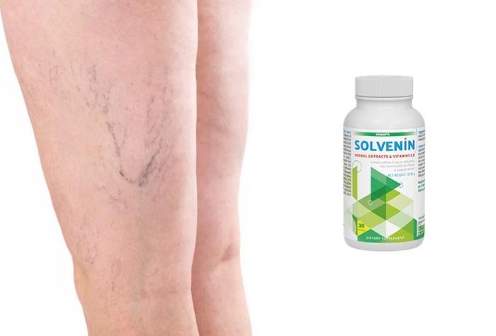 Solvenin z křečových žil: zmírní bolesti a tíhu nohou!