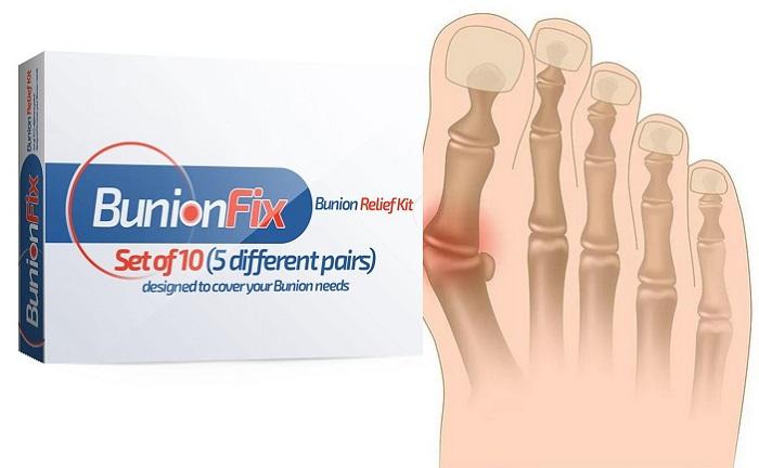 BunionFix z valgusové deformace nohy: profesionální ortopedická sada pro léčbu vbočeného palce!
