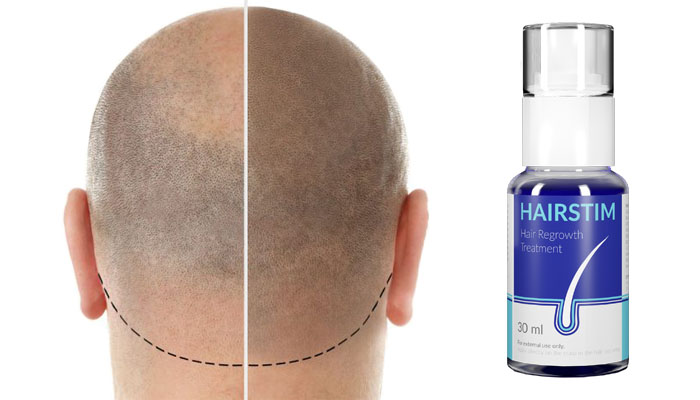 Hairstim pro růst vlasů: zbavíš se pleše, zahustíš vlasy a zvítězíš nad lupami